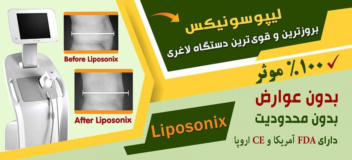 لیپوسونیکس